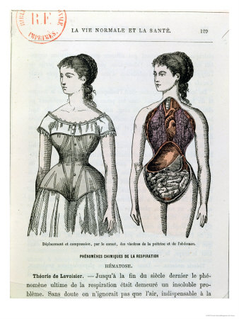 "The Harmful Effects of the Corset, Illustration from ""La Vie ..."