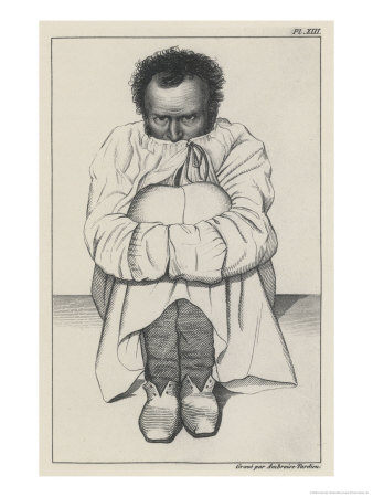 Patient in a Strait-Jacket Giclee Print
