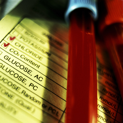 A Medical Test Checklist with Test Vials Photographic Print