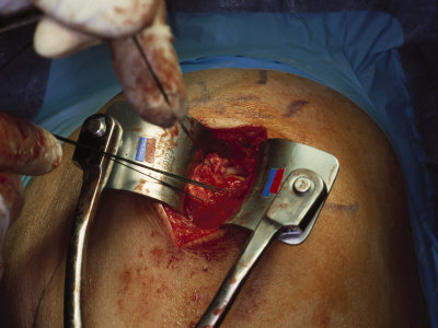 Surgery of the Shoulder Photographic Print by Scott Shapiro