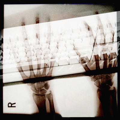 X-Ray Photograph of Person's Hands on Keyboard Photographic Print