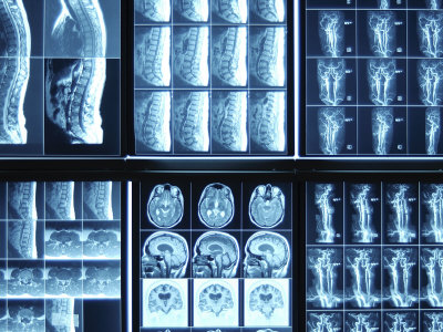 Blue Rows of Various X-Ray Images of Bones Photographic Print