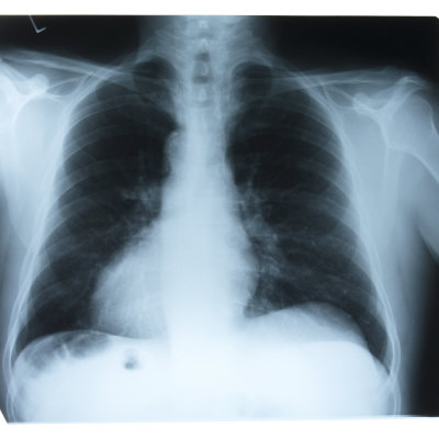 Black and White X-Ray Photograph of Ribcage of Person Photographic Print