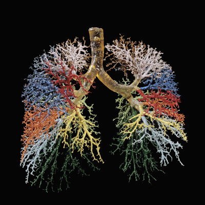 Resin Cast of Lungs, Bronchial Tree Photographic Print by Ralph Hutchings