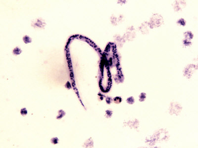 Wuchereria Bancrofti Parasitic Worm Microfilaria That Cause Elephantiasis Photographic Print by Robert Calentine