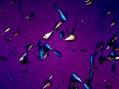 Tyrosine Crystals in Urine  Unstained  Polarized View Photographic    Tyrosine Crystals In Urine