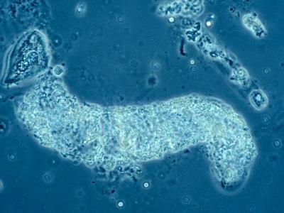Urine Sediment Granular Cast
