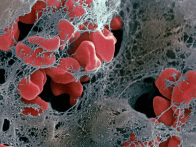 Blood Clot Formation, Showing Trapped Red Blood Cells or Erythrocytes in Fibrin Photographic Print by David Phillips
