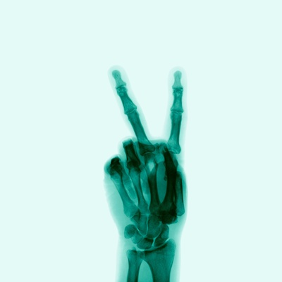 X-Ray of Hand Doing Peace Sign Photographic Print
