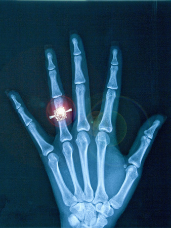 X-ray of hand with diamond ring Photographic Print by Thom Lang