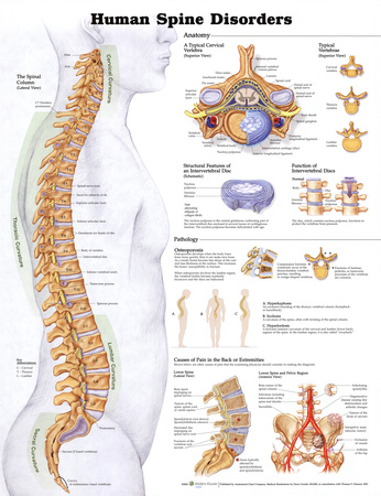 Human Spine Disorders Anatomical Chart Poster Print Posters