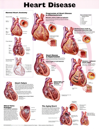 Heart Disease Anatomical Chart 2nd Edition Poster Print Posters