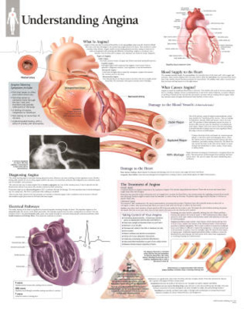 Laminated Understanding Angina Educational Disease Chart Poster Poster