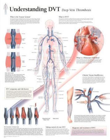 Understanding DVT Educational Disease Chart Poster Prints