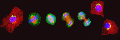 Confocal Image of Cells at Various Stages of Mitosis Photographic Print by Thomas Deerinck