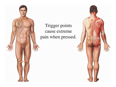 Illustration Showing the Trigger Points Associated with Fibromyalgia Syndrome (Fms) Giclee Print by  Nucleus Medical Art