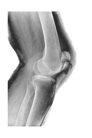 Fractured Kneecap, X-ray Giclee Print by Du Cane Medical