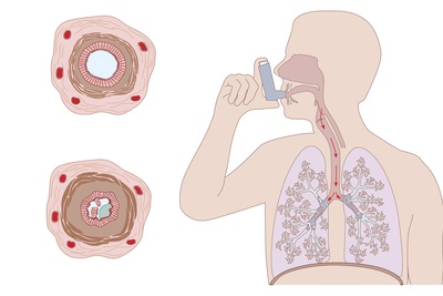 Asthma Pathology And Treatment, Diagram Photographic Print by Peter Gardiner