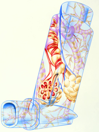 Artwork of Asthmatic Respiratory System on Inhaler Photographic Print by John Bavosi