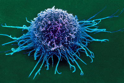Coloured SEM of a Cancer Cell Photographic Print by Steve Gschmeissner