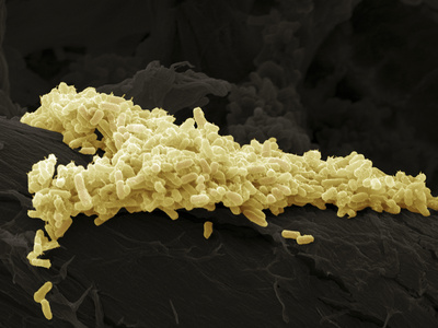 E. Coli Bacteria, SEM Premium Photographic Print by Steve Gschmeissner