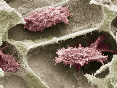 Osteoclasts In Bone Lacunae, SEM Premium Photographic Print by Steve Gschmeissner