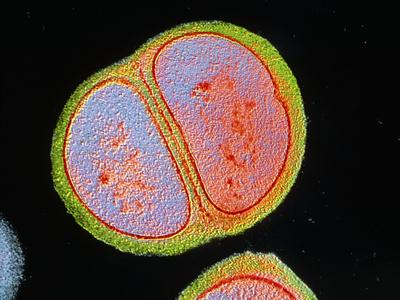 Staphylococcus Epidermidis Bacterium Photographic Print