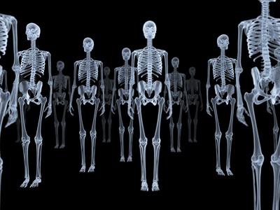 Skeletons, X-ray Artwork Photographic Print by David Mack
