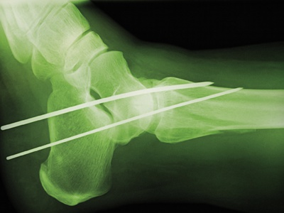 Temporary Ankle Immobilisation, X-ray Photographic Print by Miriam Maslo