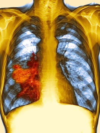 Lung Cancer, X-ray Photographic Print by Du Cane Medical