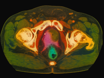 Coloured MRI Scan Showing Prostate Cancer Photographic Print by Science Photo Library