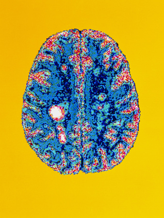 Col. MRI Scan of a Brain with Multiple Sclerosis Photographic Print by Science Photo Library