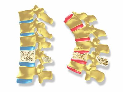 Osteoporosis Photographic Print by  PASIEKA