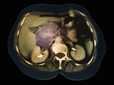 Cystic Pancreas Tumour, CT Scan Photographic Print by  ZEPHYR