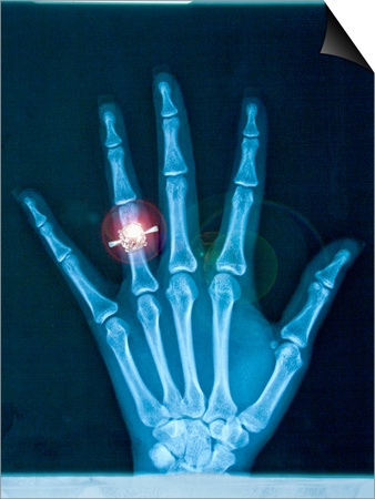 X-ray of hand with diamond ring Prints by Thom Lang