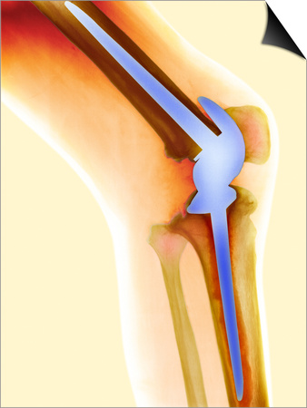 Knee Replacement, X-ray Poster by Science Photo Library