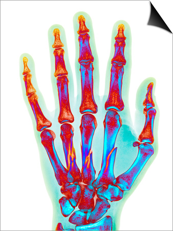 Fractured Palm Bones of Hand, X-ray Prints by Science Photo Library