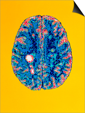 Col. MRI Scan of a Brain with Multiple Sclerosis Posters by Science Photo Library