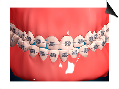 Medical Illustration of Human Mouth Showing Teeth, Gums and Metal Braces Prints