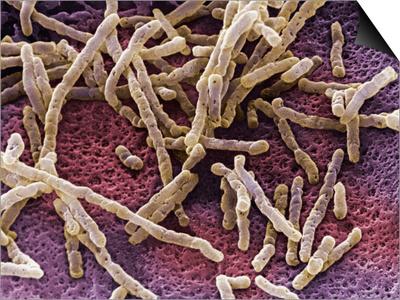 Clostridium Bacteria, SEM X11,000 Prints by David Phillips