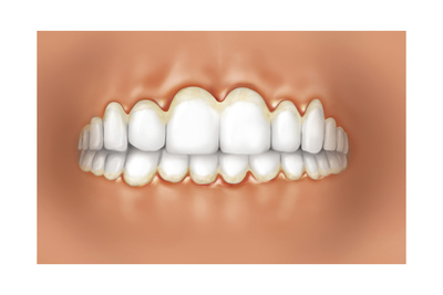 View of Teeth Showing Gingivitis on Gums Prints