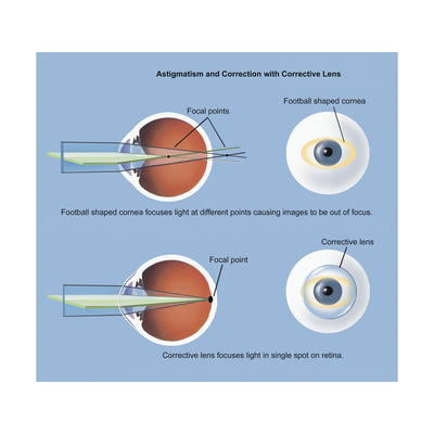 astigmatism essay People who started out with nearsightedness (rather than farsightedness or astigmatism) tended to be more satisfied with the surgery.