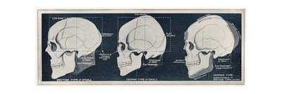 Comparison of British and German Skull Shapes, WW1 Giclee Print