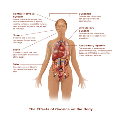 Effects of Cocaine Use Poster by Gwen Shockey