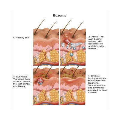 Eczema Prints by Gwen Shockey