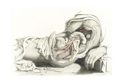 Arteries, Female Pelvis, 19th Century Art by  Science Source