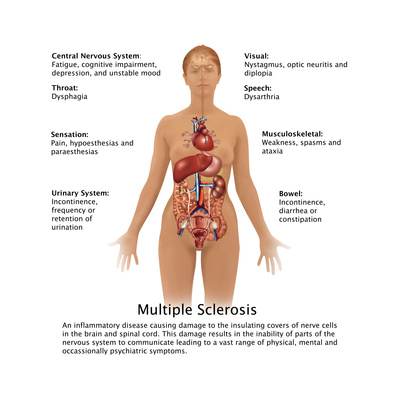 Symptoms of Multiple Sclerosis Posters by Gwen Shockey