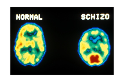 PET scans, normal and schizophrenic Print by  Science Source