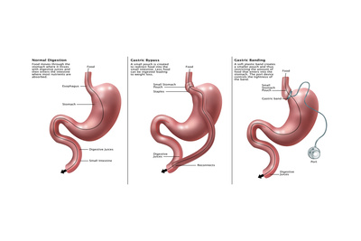 Digestive System: Normal, Gastric Band, Bypass Print by Gwen Shockey