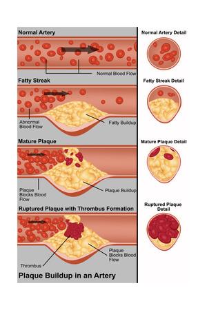Plaque in Artery Prints by Gwen Shockey